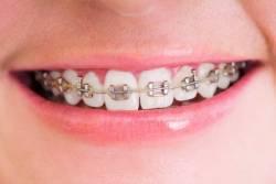 รู้จัก ข้อดีข้อเสียของการจัดฟัน ให้สวยงาม